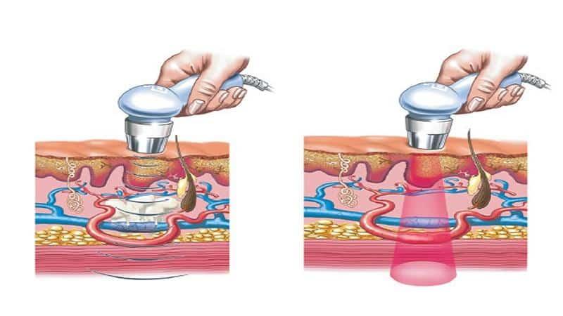 Как проходит лечение ультразвуком
