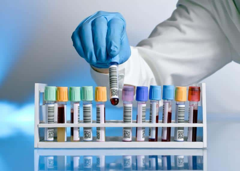 АЦЦП и другие анализы при артрите