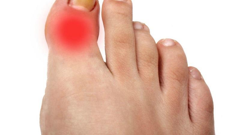 Что делать, если болит сустав большого пальца на ноге
