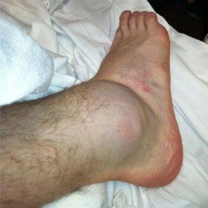 Что делать, если отекла нога в области щиколотки