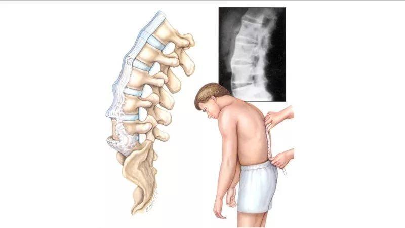 Что такое плоская спина