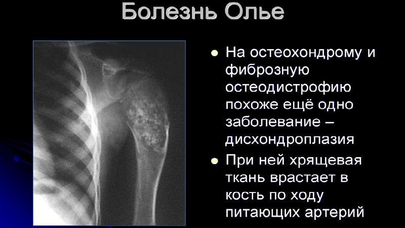 Как лечить болезнь Олье