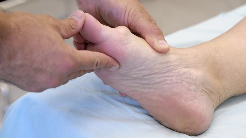 Как лечить деформацию пальцев ног и рук