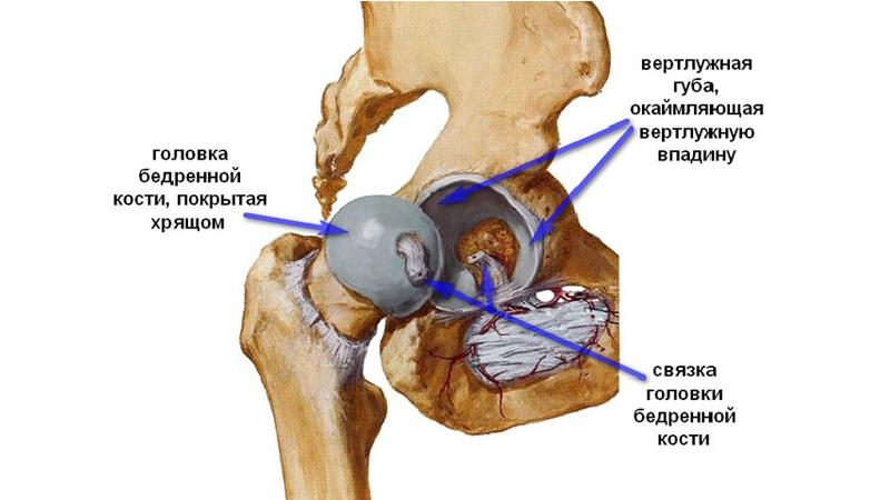 Как лечить диспластический коксартроз тазобедренного сустава