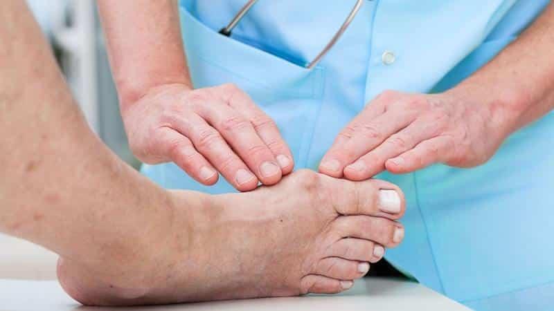 Как лечить вальгусную деформацию стопы