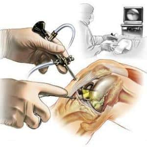Какие операции проводят на мениске