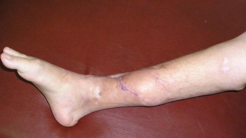 Что такое остеомиелит и как его лечат