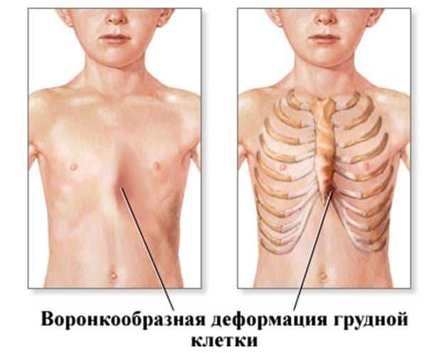 Как лечить воронкообразную деформацию грудной клетки