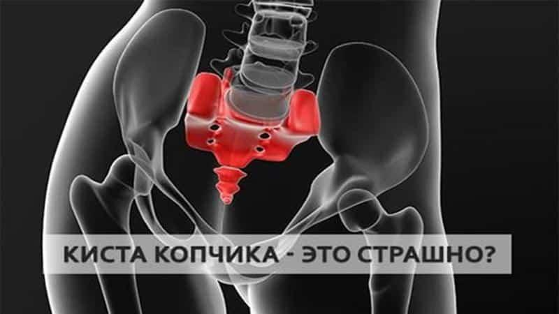 Как лечить воспаление копчикового хода