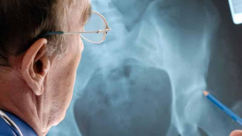 Что делать, если болит тазобедренный сустав