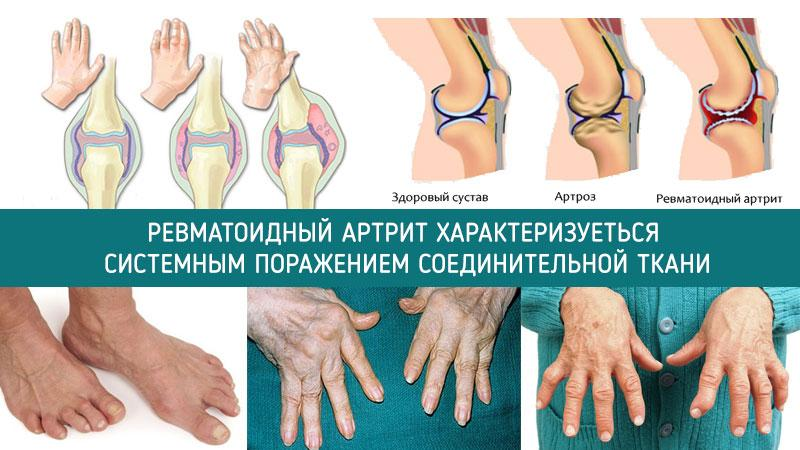 Что такое артроз плечевого сустава и как его лечить