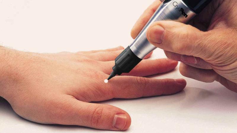 Как лечить гигрому пальца руки