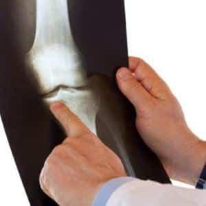 Как лечить остеохондропатию большеберцовой кости