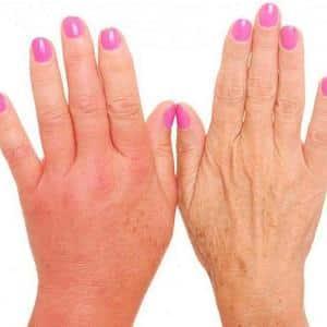 Как лечить отек рук