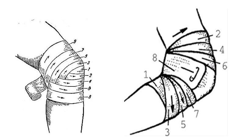 Изображение - Повязка на локтевой сустав алгоритм kak-nalozhit-cherepashyu-povyazku-2