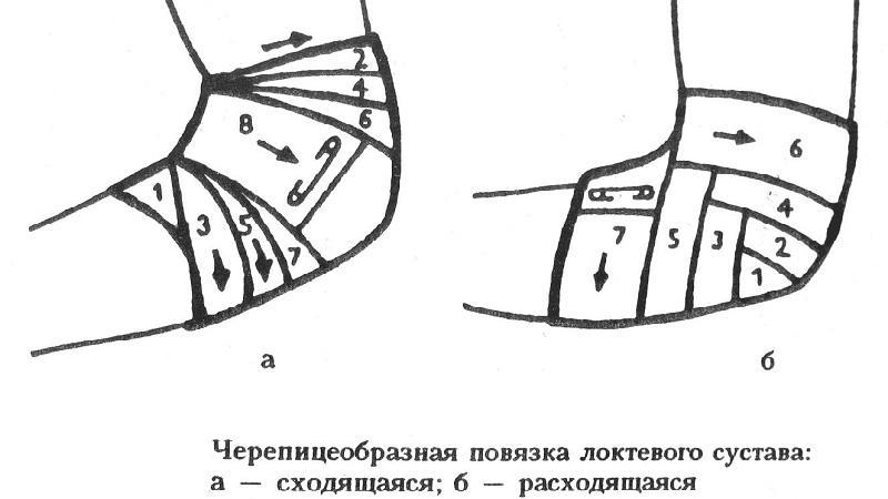 Изображение - Повязка на локтевой сустав алгоритм kak-nalozhit-cherepashyu-povyazku-3