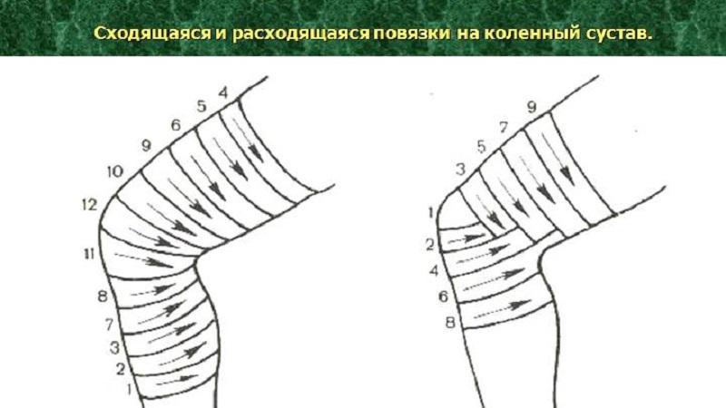 Изображение - Повязка на локтевой сустав алгоритм kak-nalozhit-cherepashyu-povyazku-4