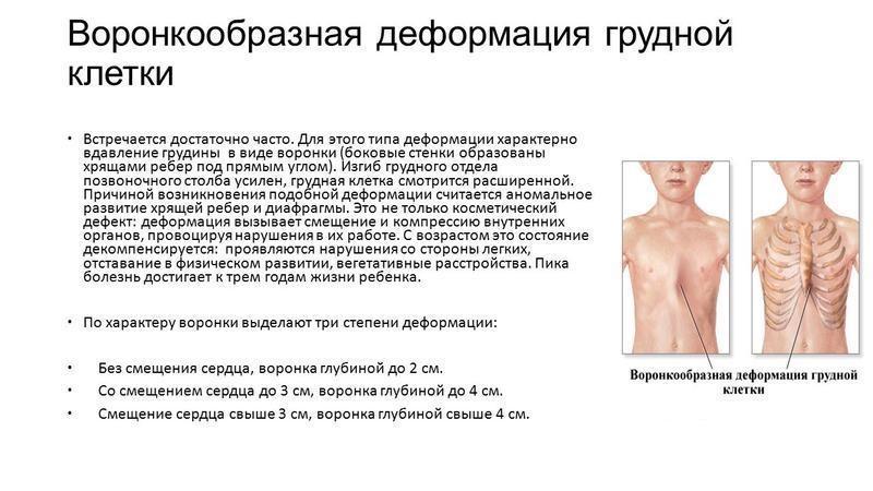 Какие бывают деформации грудной клетки