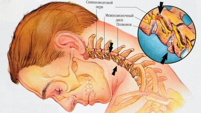 Может ли при шейном остеохондрозе болеть горло