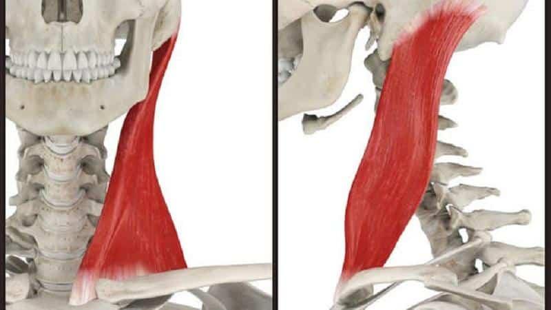 Как лечить воспаление грудино-ключично-сосцевидной мышцы