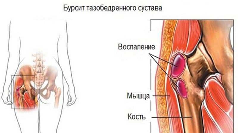 Что делать, когда болят кости таза