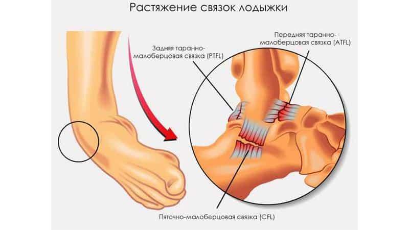 Что такое щиколотка и что делать при болях