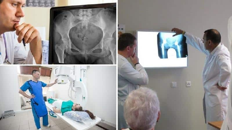 Как делают рентген тазобедренного сустава