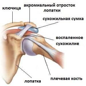 Что делать, когда болит плечо и предплечье