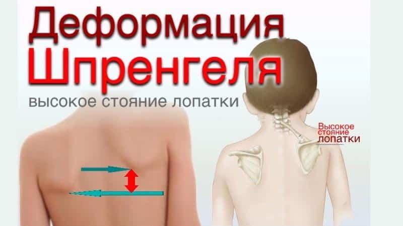 Как лечить болезнь Шпренгеля