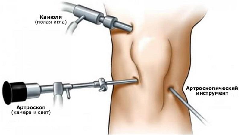 Что такое артроскопия коленного сустава и как она делается