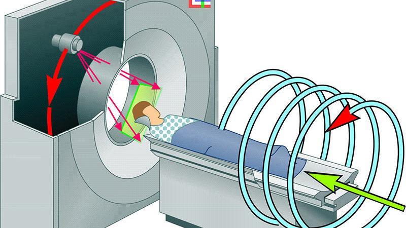 Что такое спиральная компьютерная томография