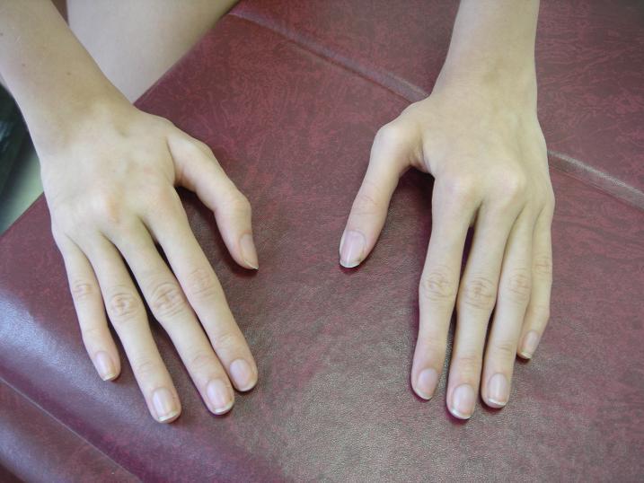 Как лечить паучьи пальцы