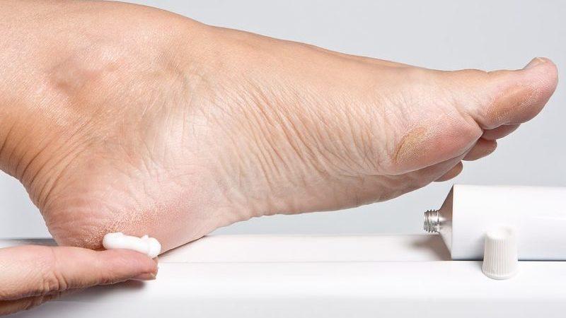 Как лечить шишки на пятках