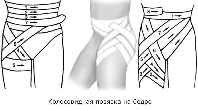 Как правильно бинтовать ноги эластичным бинтом