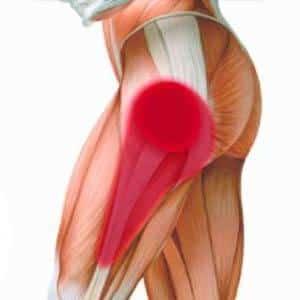 Как лечить растяжение и боль задней поверхности бедра