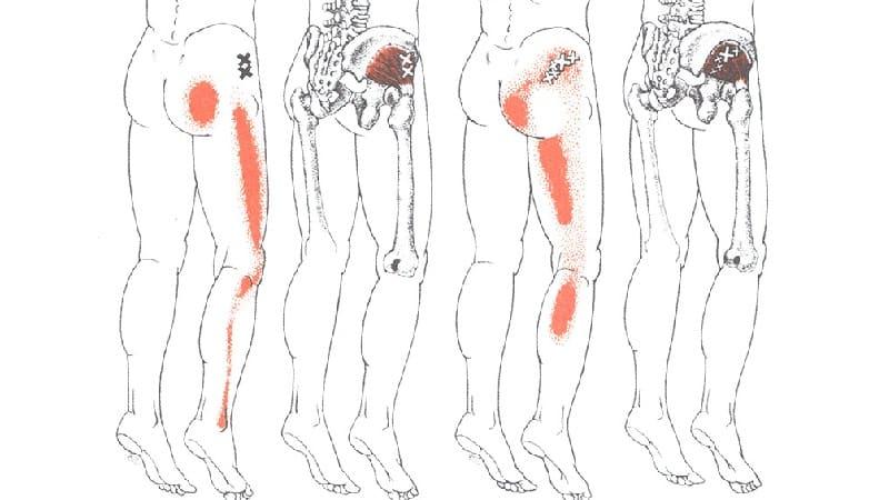Что делать, когда болят ягодичные мышцы