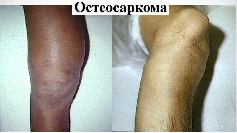 Как лечат остеосаркому