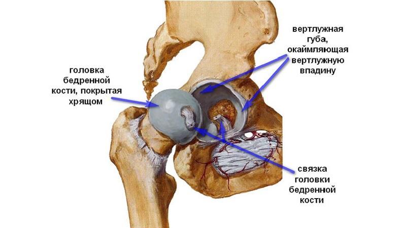 Как лечить эпифизеолиз головки бедренной кости