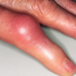Как лечить кисту на пальце руки