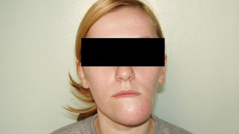 Как лечить подвывих челюстного сустава