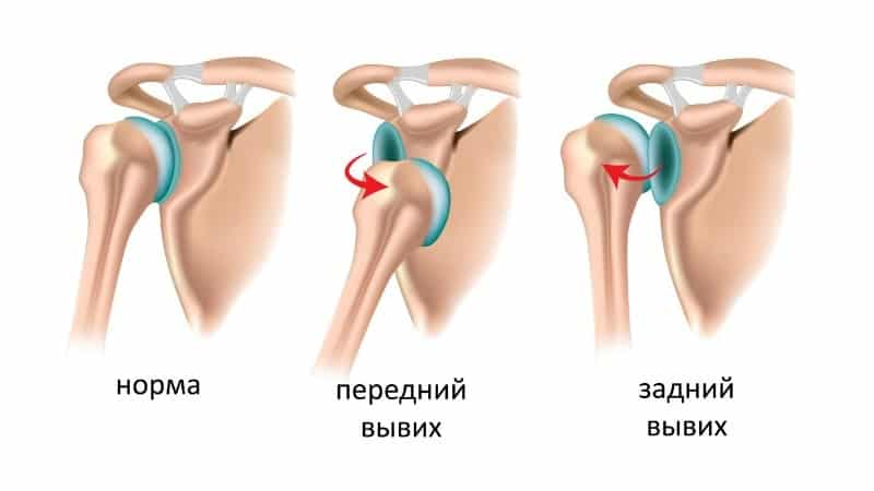 Как лечить растяжение связок плечевого сустава