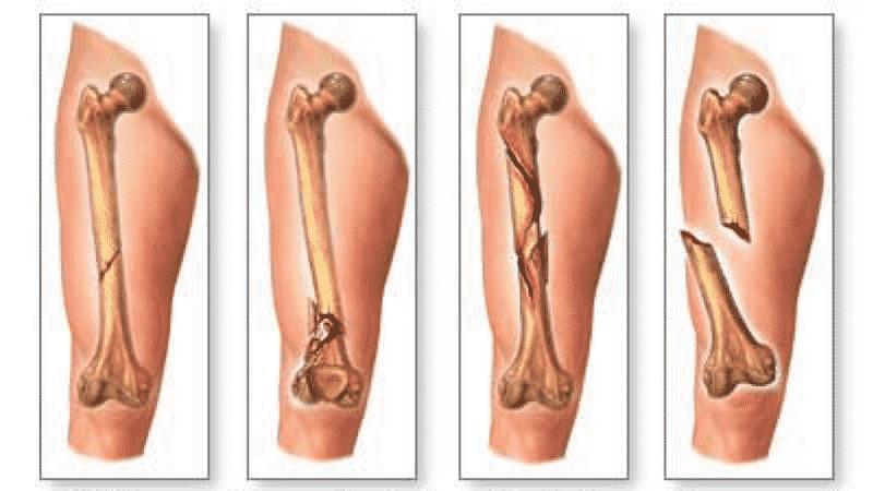 Как лечить трещину в кости