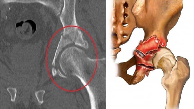 Как устроена вертлужная впадина тазовой кости и чем опасны её травмы