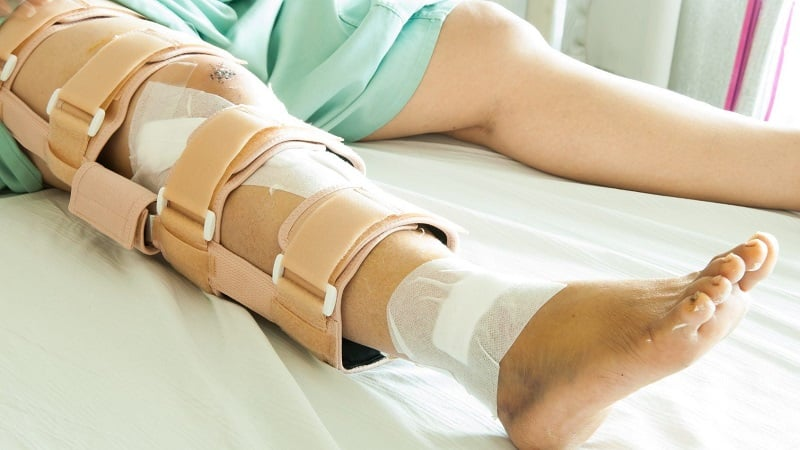Как лечить перелом ноги