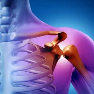 Как лечить перелом шейки плеча
