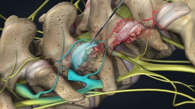 Как лечить периартикулярный фиброз позвоночника