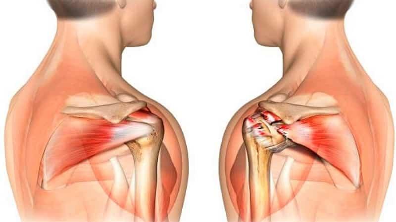 Как лечить повреждение сухожилия надостной мышцы плеча
