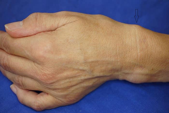 Как лечить тендовагинит сустава
